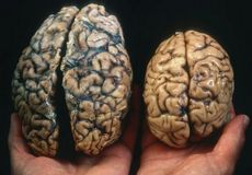 Чем отличается человеческий мозг от мозга приматов