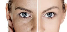 Как выровнять кожу лица? правильные рекомендации!