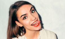 На пути к идеальной улыбке: брекеты – приговор?